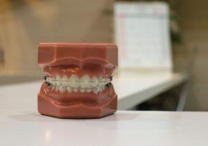 フィリピン 歯列矯正
